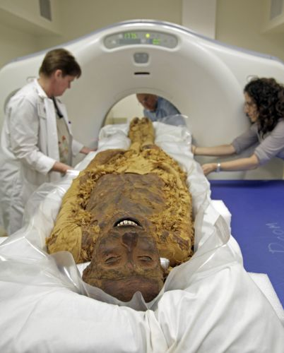 Exame de múmia