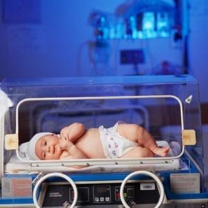 O Brasil aparece em décimo lugar no levantamento, com 279 mil partos prematuros por ano