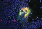 Células da medula óssea podem provocar metástases
