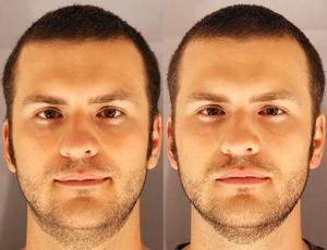 À esquerda, homem após uma noite de sono; à direita, sua aparência após uma noite em claro