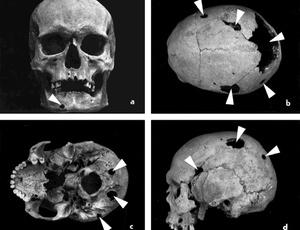 Evidência de tumores em crânio de homem exumado em cemitério medieval na Eslováquia