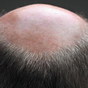A análise desses resultados indicou que o risco de doença coronária é maior quanto mais severa for a calvície, mas apenas se a falta de cabelo afetar o topo da cabeça, e não a região acima da testa