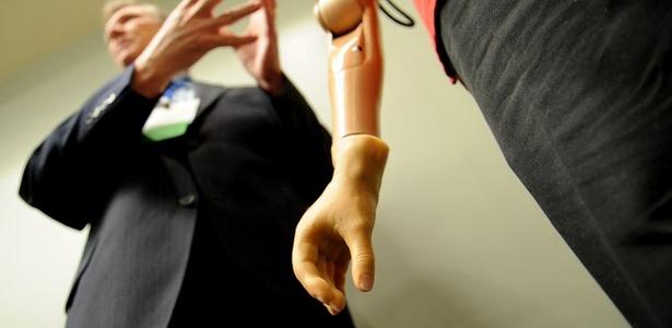 Médico apresenta o braço biônico controlado pela mente do usuário; veja no álbum