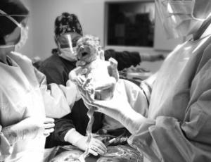 Esperar até três minutos para fazer o procedimento aumenta os níveis de ferro até os quatro meses do bebê
