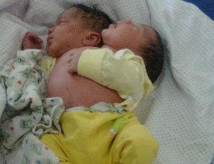 Gêmeos siameses, Jesus e Emanuel, têm dois cérebros, duas colunas e um só coração