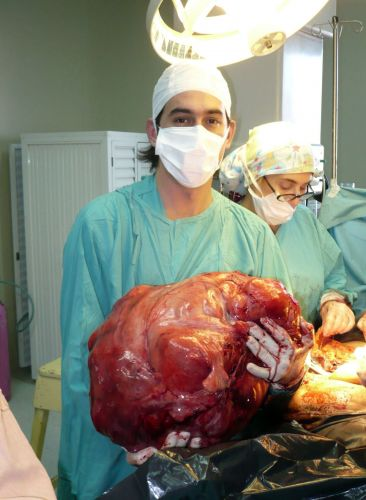 Tumor de 23 kg
