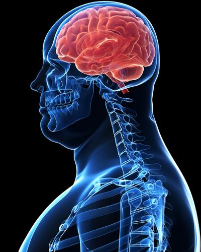 Cérebro de obesos é diferente dos magros