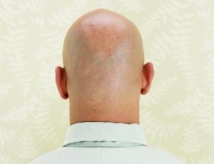 A calvície precoce ocorre com mais frequência nos homens do que nas mulheres