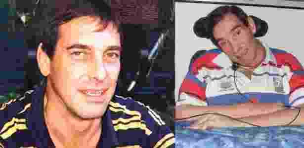 Tony Nicklinson antes e depois do derrame - PA