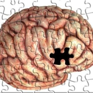 Terapia hormonal contra câncer de próstata é associada a Alzheimer